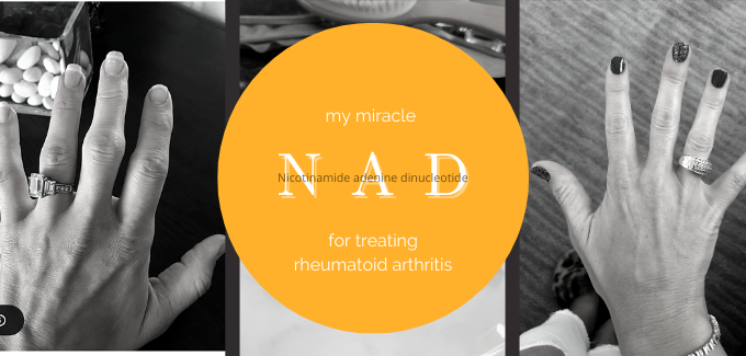 NAD and rheumatoid arthritis